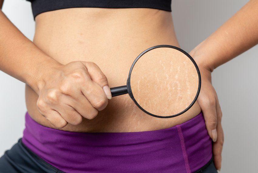 Во время беременности на теле часто появляются растяжки