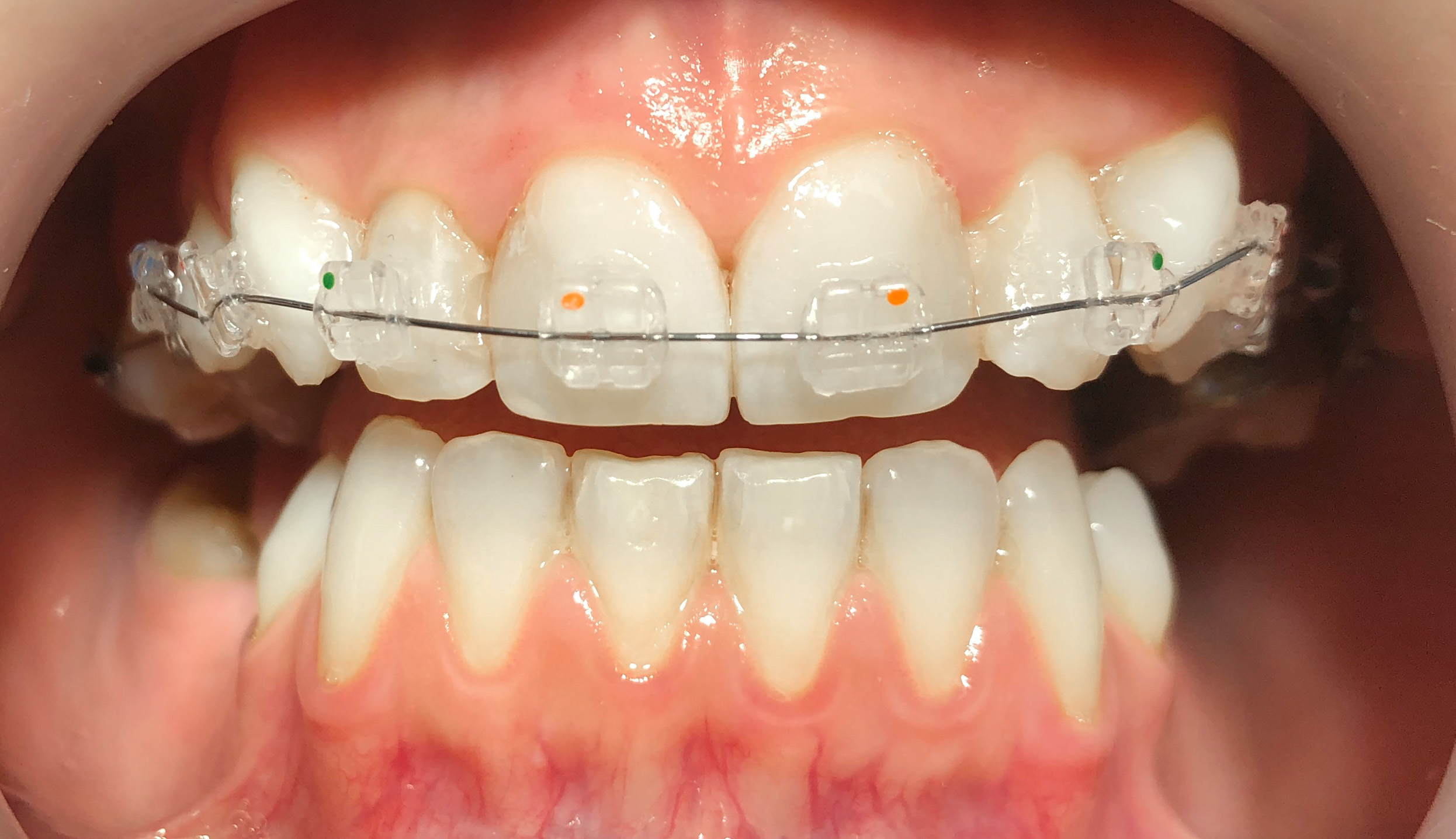 Foto: 'Dental Aesthetics' Kiseljak